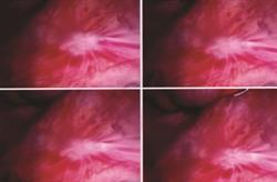 Diagnosis and treatment of endometriosis