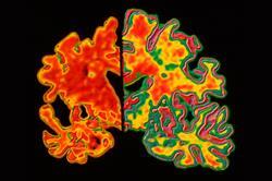 NICE amends Alzheimer's guidance