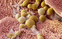 NICE approves apremilast for refractory psoriasis