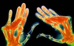Arthritis treatment options widened with launch of anti-IL-6 antibody