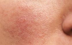 Cardiovascular warning for rosacea gel