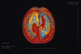 Alzheimer Society 'brain scan' by Rethink Canada