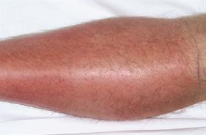 Diagnosis and management of cellulitis