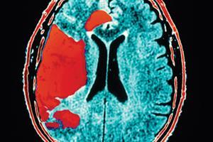 Patients who self-monitor warfarin halve stroke risk