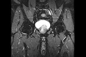 Journals Watch - Prostate cancer, CVD risks and QOF