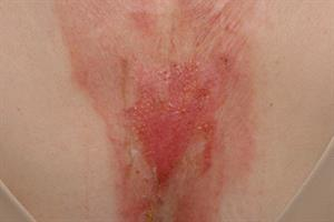 Clinical images: Trauma