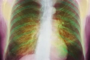 Huge GP screening drive set out in COPD plans