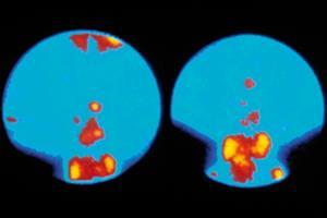 Evidence base: Hyperparathyroidism