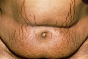 Clinical Review - Cushing's syndrome