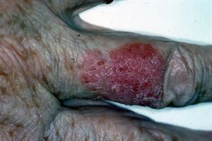 At a Glance - Bowen's disease vs contact dermatitis