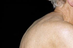 The basics - Osteoporosis