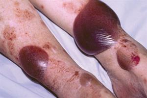 Clinical images: blistering