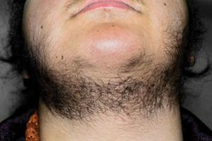 Red flag symptoms: Hirsutism