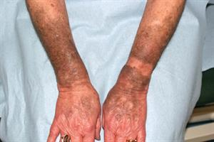 Pictorial case study: Drug-induced dyspigmentation
