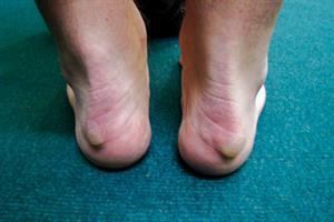 Pictorial case study: Heel pain