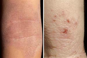 Evidence base: Atopic eczema