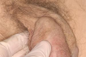 Clinical pictures: Male genital problems