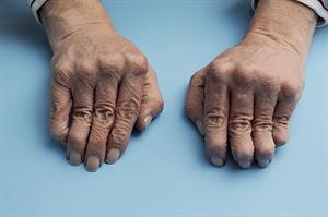 NICE approves golimumab for rheumatoid arthritis