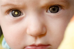 Eye disease - Recognising retinoblastoma