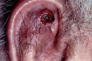 Differential diagnoses: Conditions affecting the ears
