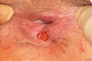 Red flag symptoms: Rectal bleeding