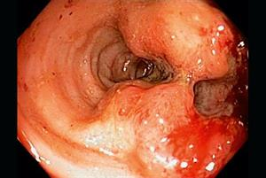 Blood tests could detect colorectal cancer early