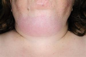 Pictorial case study - Submandibular swelling
