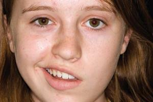Case Study - Young patient with facial weakness