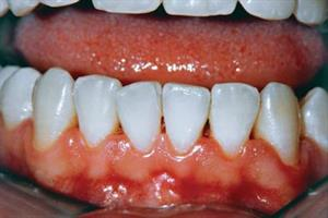 The management of gingivitis
