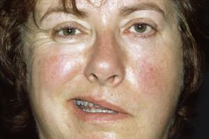 Journals Watch - Bell's palsy, flu and menopause