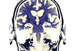 Dementia risk predictable through self-rated health