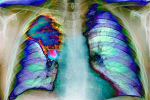 Journals Watch - Lung cancer, heart failure and falls
