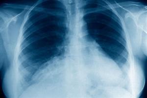 Antipsychotics linked to pneumonia
