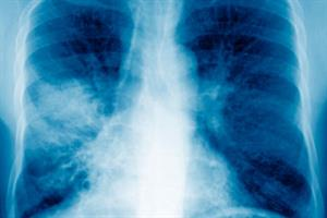 The Basics - Community-acquired pneumonia