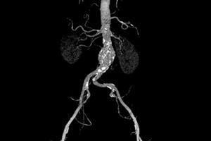 Journals Club - Abdominal aortic aneurysm screening