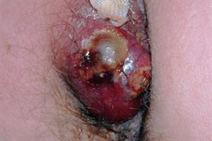 Evidence base: Perianal sepsis