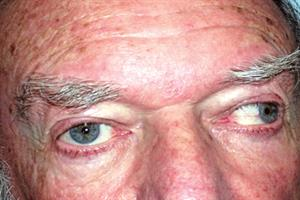 Case study - Eye pain and double vision
