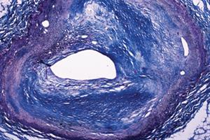 Protein 'reverses atherosclerosis'