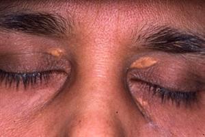 At a Glance - Xanthelasma vs syringoma