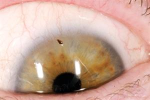 Red Flag Symptoms - Eye pain
