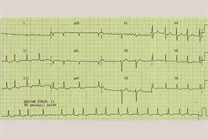 Clinical review: Atrial fibrillation