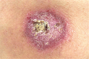 Differential diagnoses: Crusted skin lesions