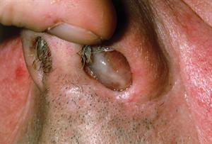 Pictorial case study - Nasal polyps