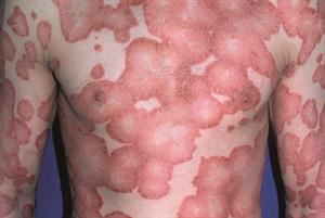 Quality of life assessment in skin disease