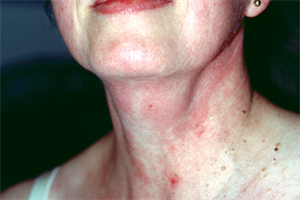 Neck swellings: differential diagnoses