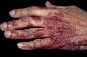 Differential diagnoses: Conditions of the hands