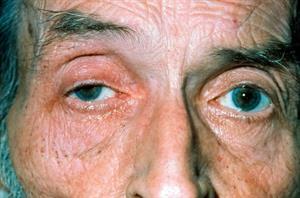 Red flag symptoms: Diplopia