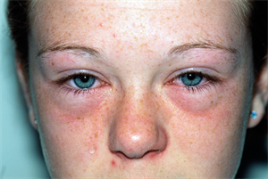 Case study: Hayfever in an adolescent