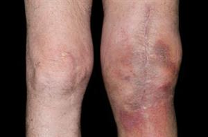 Complications after total knee replacement surgery