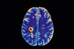 Multiple sclerosis: clinical review